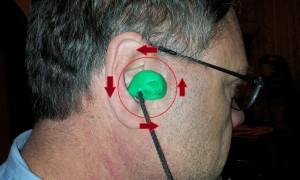 Earplug Rotation